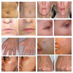 Matrixyl 3000 Peptide Cream Hyaluronic Acid ha Wrinkle Collagen